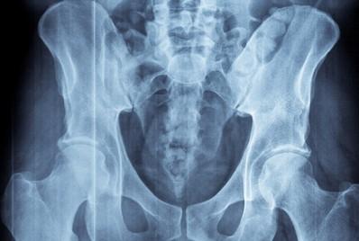 x-ray imaging test for ankylosing spondylitis