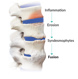 Image of a spine showing phases of back pain